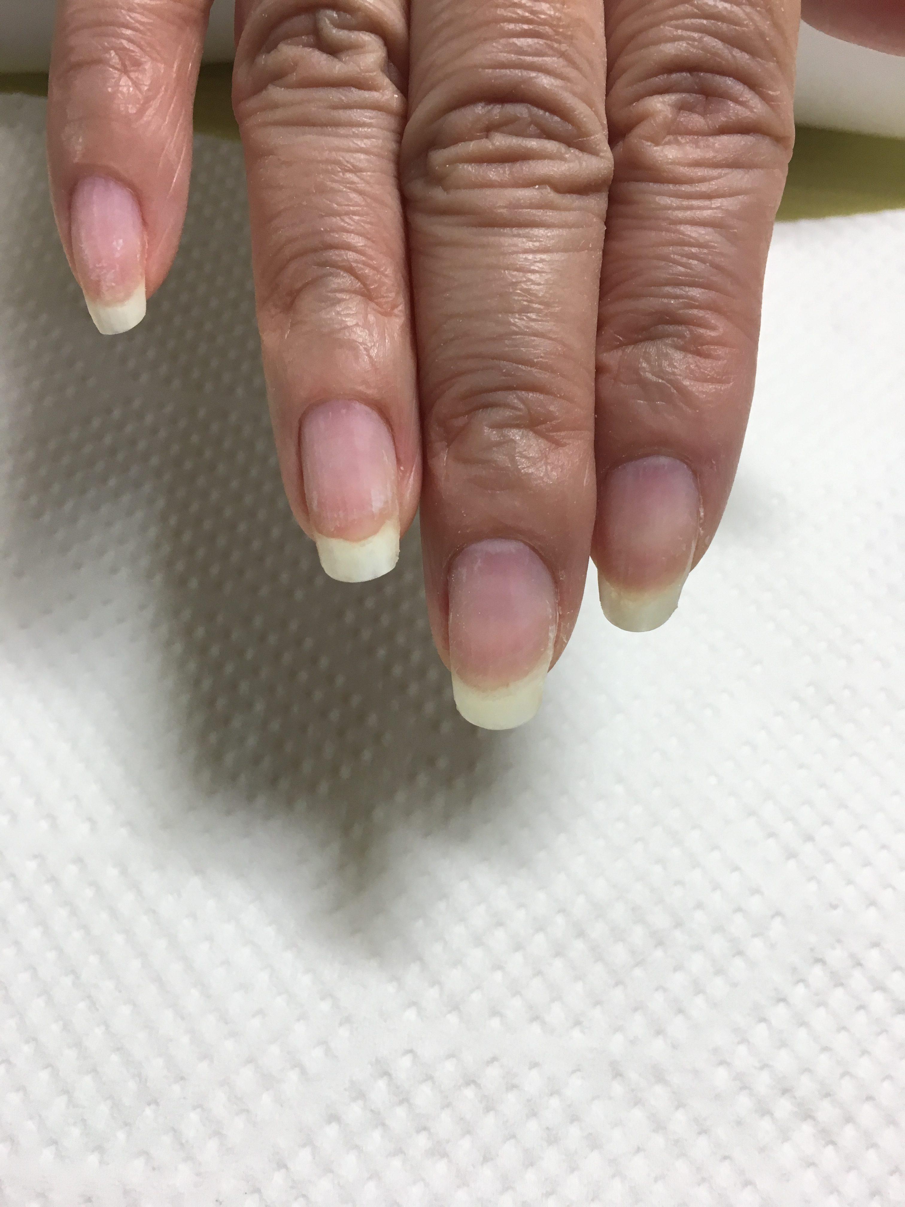 丈夫な地爪 ジェルをオフしても地爪が傷まない 爪改善 爪強化