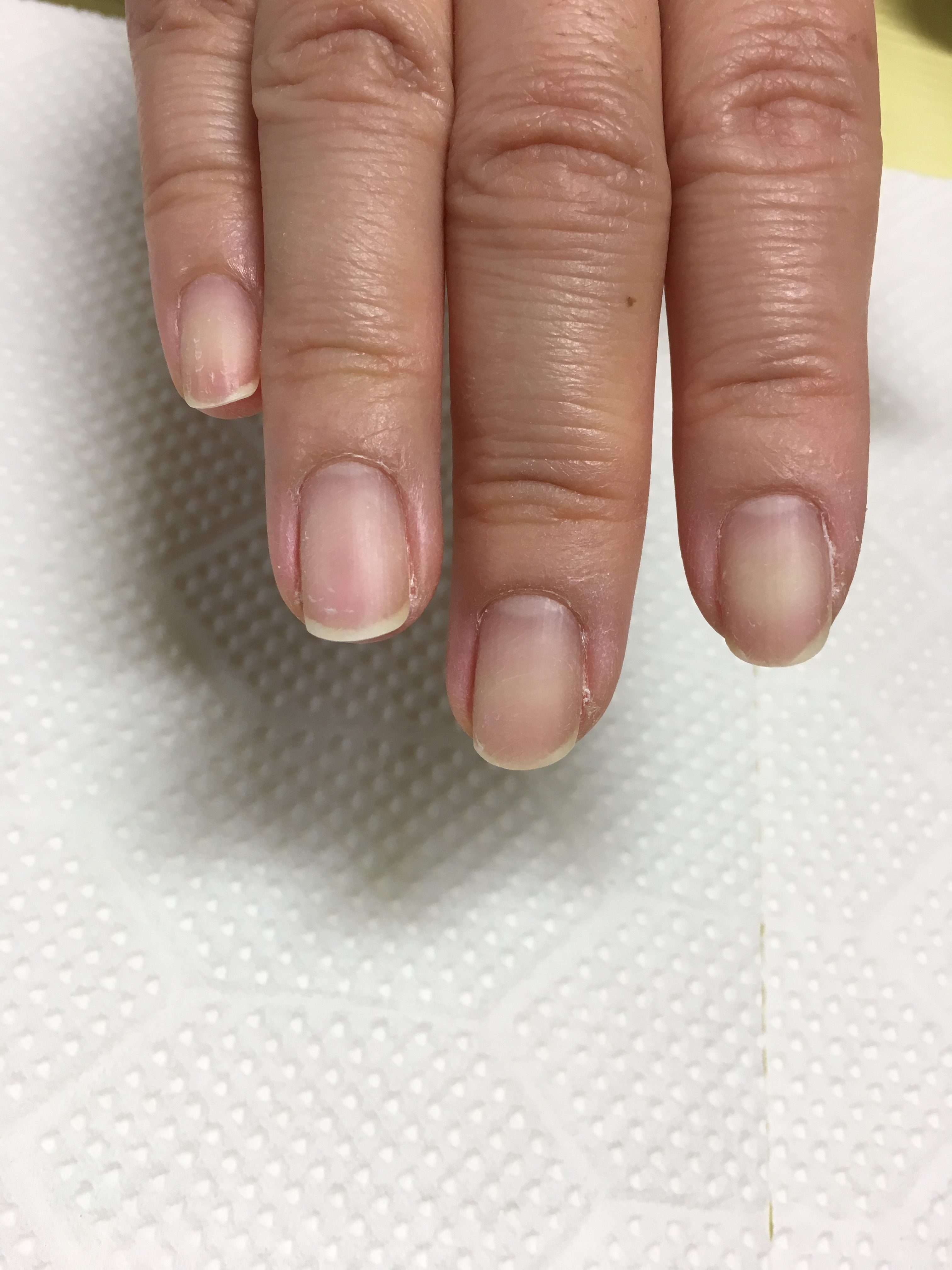 丈夫な地爪
